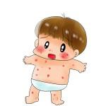 子供が水疱瘡かも?初期症状と写真画像はコチラ!